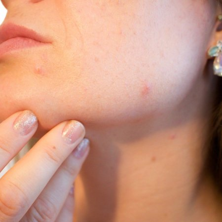 3-sneaky-causes-of-acne-it's-not-only-your-dirty-cellphone