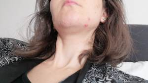 3-sneaky-causes-of-acne-it's-not-just-your-dirty-cellphone